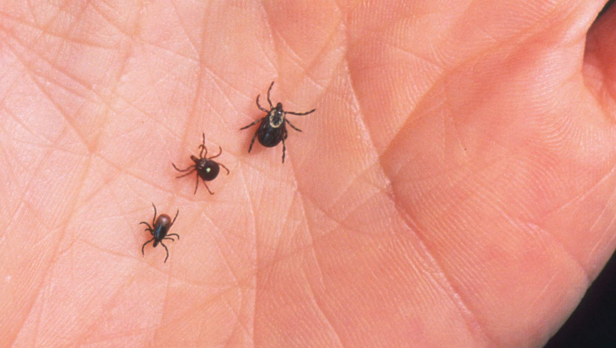 Likelihood of tick bite to cause red meat allergy could be higher than previously though