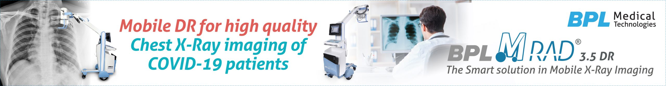 Mobile DR for high quality chest X-ray