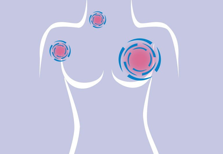 All you need to know about Breast Cancer